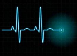 3188-cardiogram_[320x200]